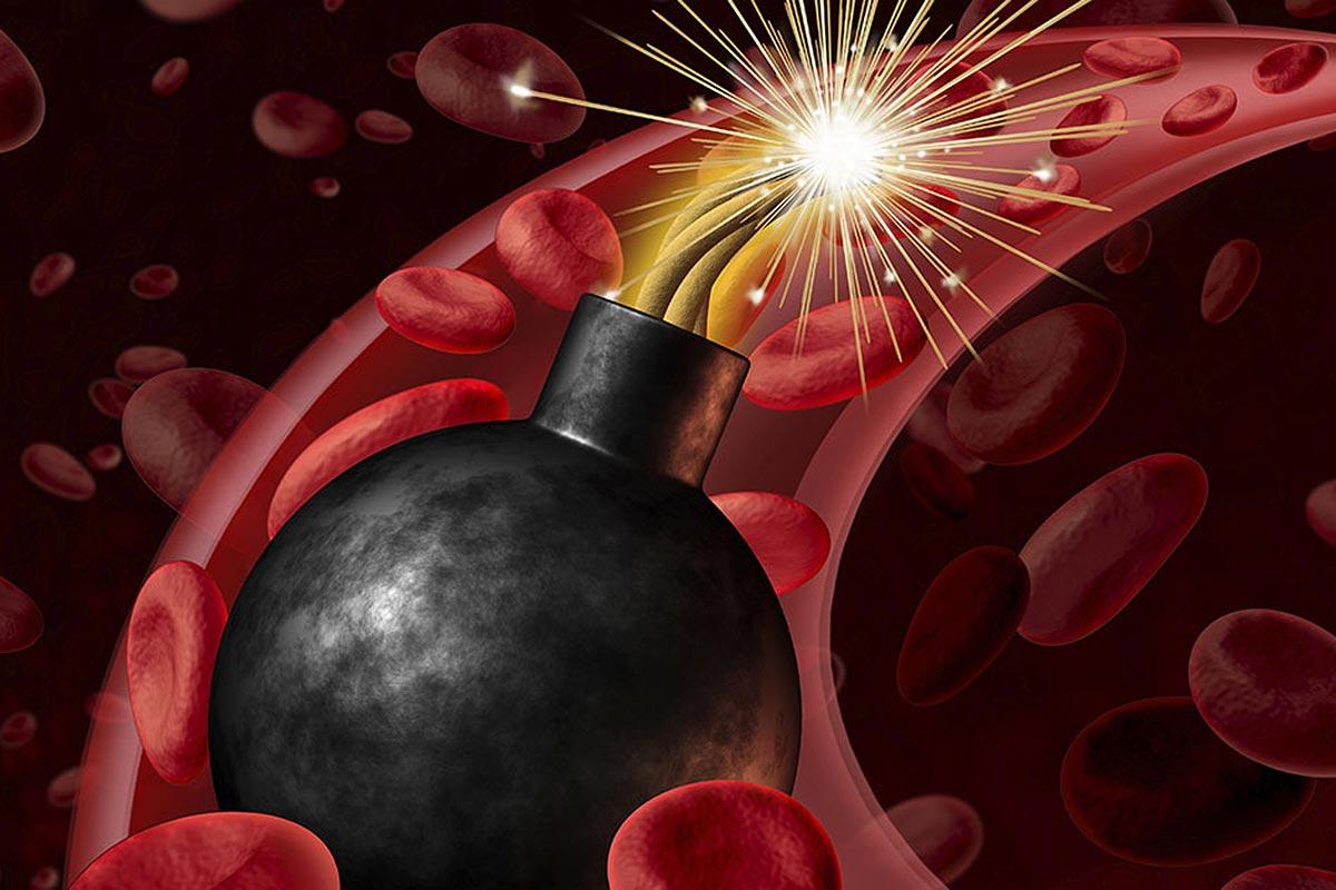 ¿Cómo bajar el colesterol malo (LDL)? – Alimentos permitidos y prohibidos