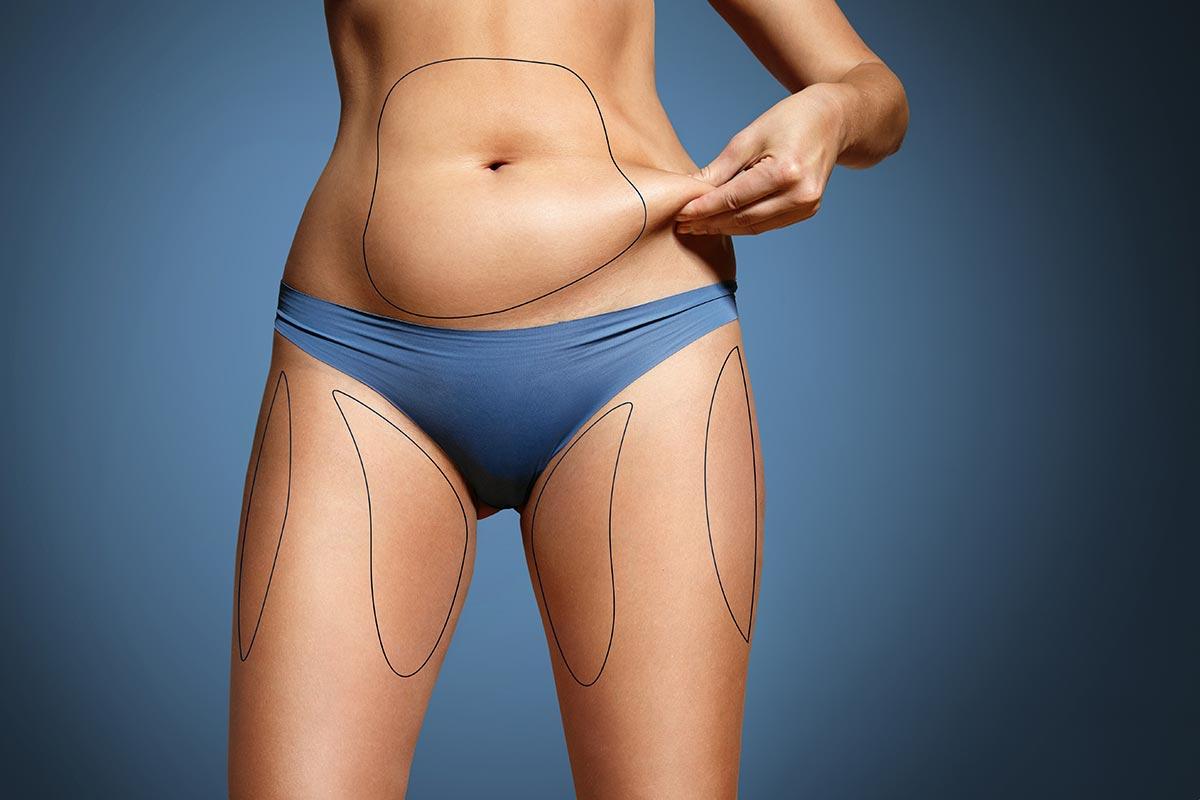 Grasa subcutánea – ¿Qué es y cómo eliminar la grasa debajo de la piel?