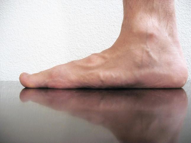 sindrome de pie plano adolescentes