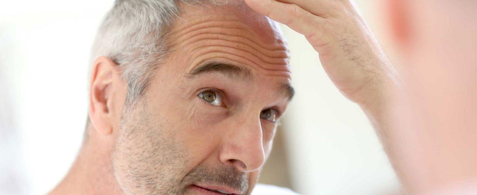 Testosterona y calvicie –  Causas y etapas de la pérdida de cabello