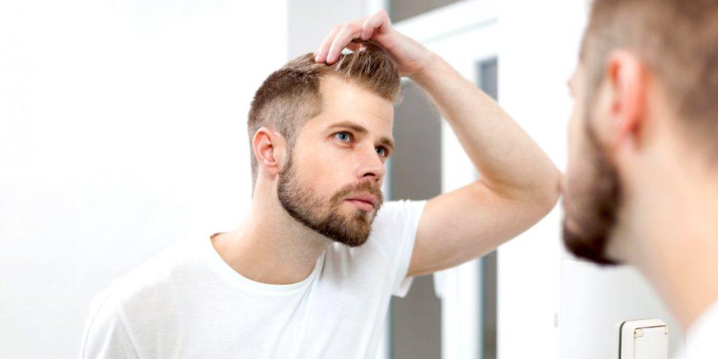 testosterona y calvicie perdida de cabello causas