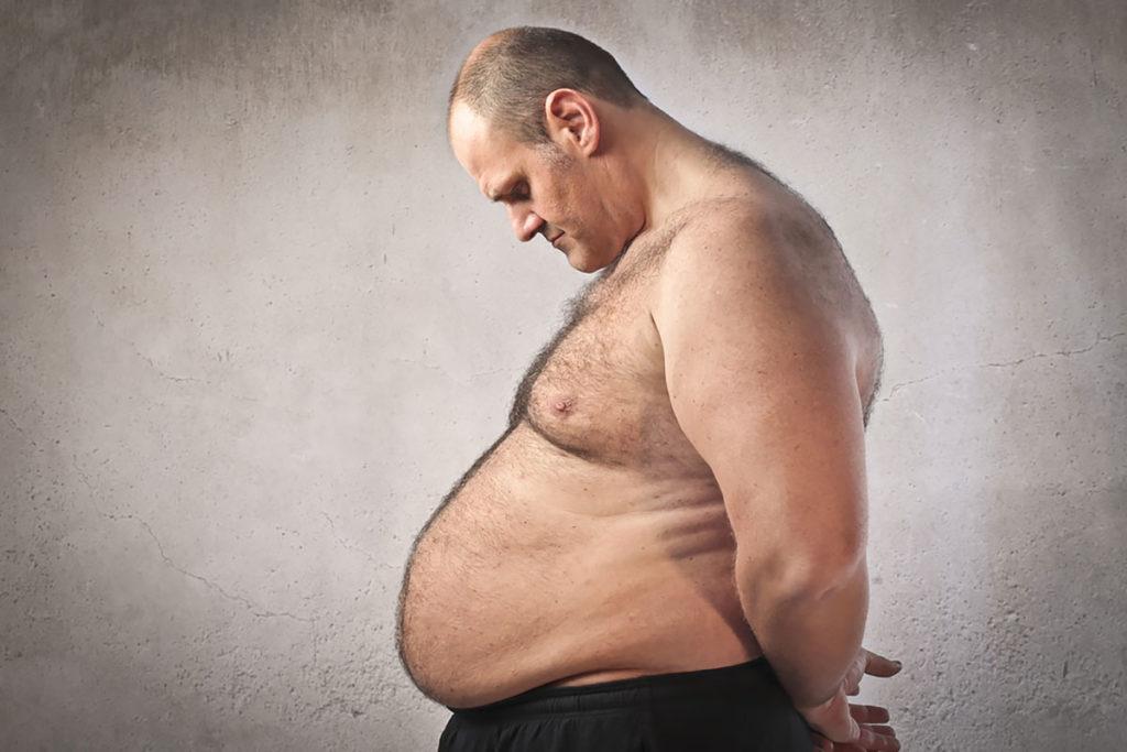 exceso de grasa