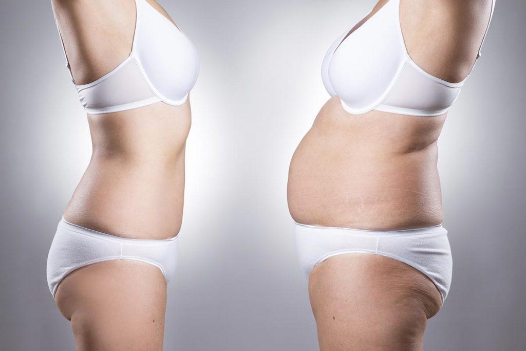 por que se engordar al dejar la dieta keto
