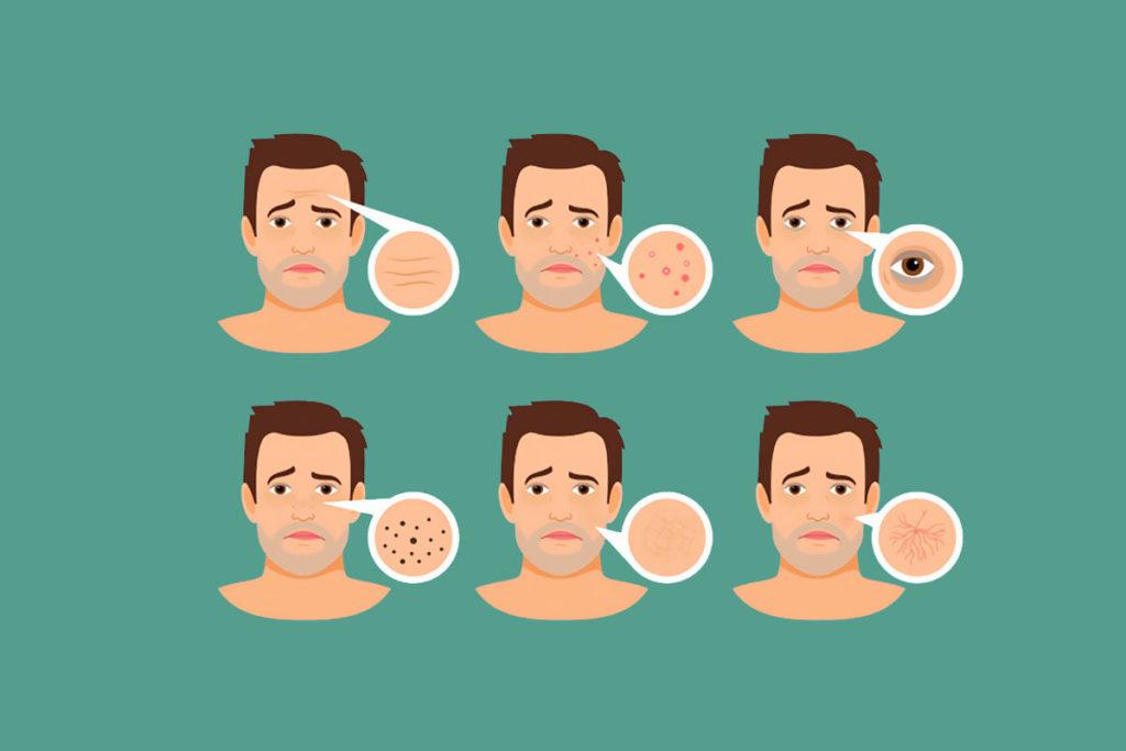 quitar la grasa de la piel en la adolescencia